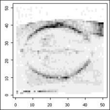 Figure 1: An ultrasound image.